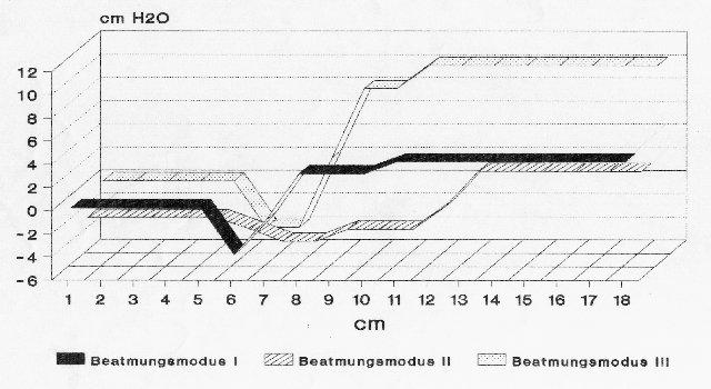 Druckverhalten im Jet-Laryngoskop