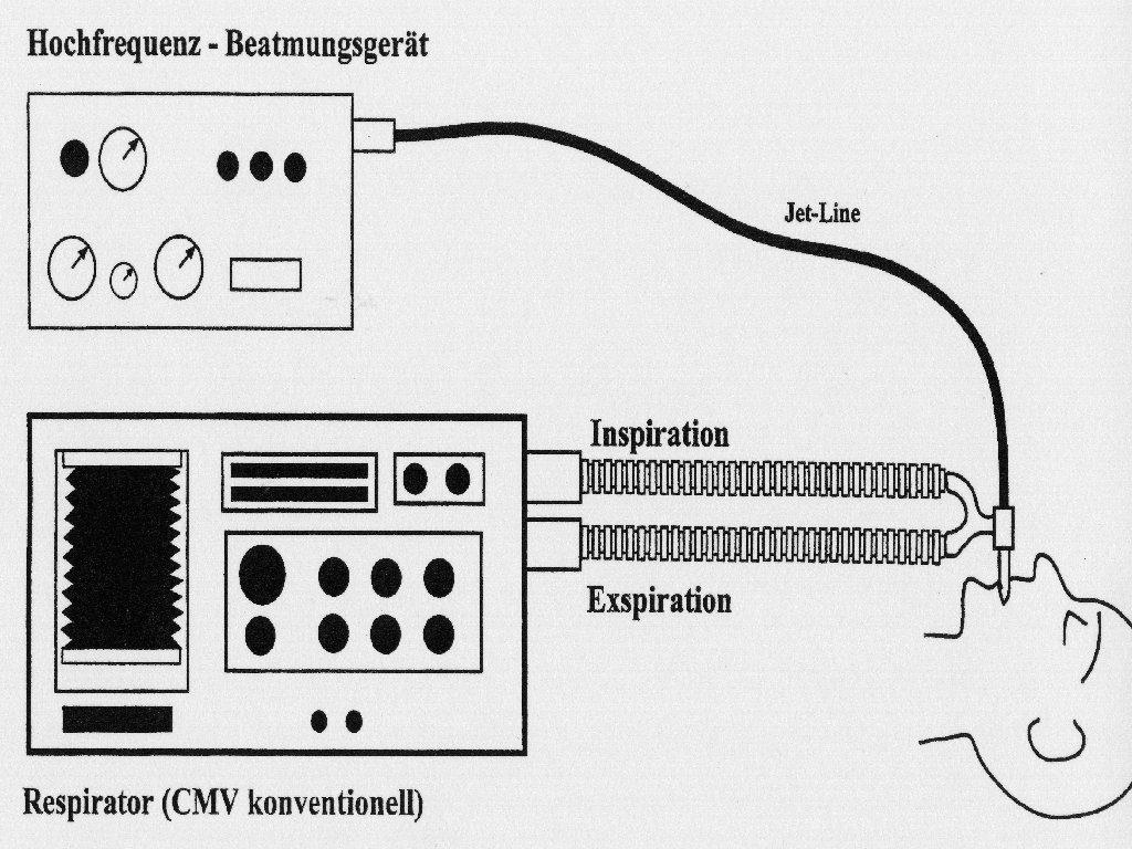 Geräte für eine kombinierte Hochfrequenzbeatmung