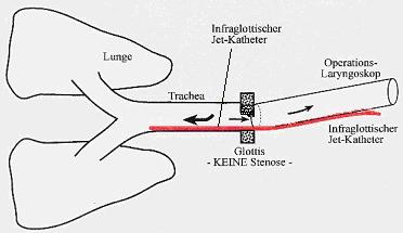 Jetkatheters bei transoraler Jetventilation