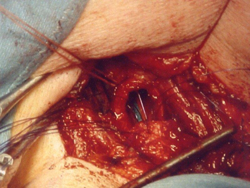 Trachealquerresektion