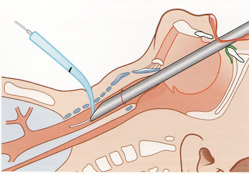 Tracheotomie-Endoskop